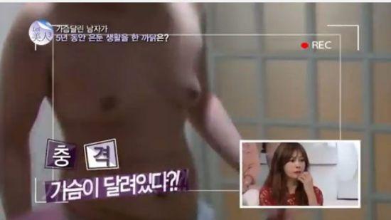 클라인펠터증후군. 사진=tvN '렛미인3' 캡처