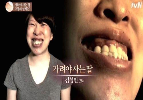 터너증후군. 사진=tvN '렛미인5' 캡처