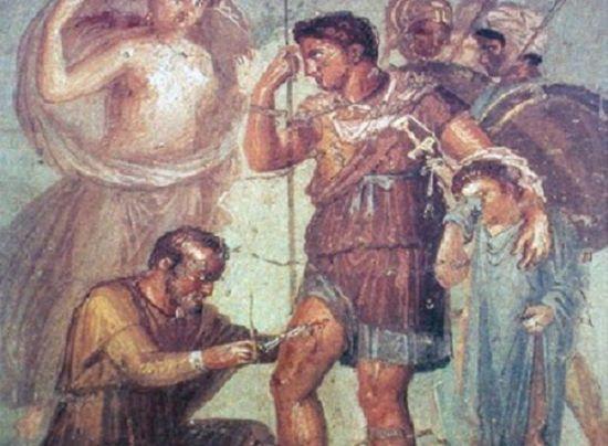 폼페이 벽화에 나온 수술도구로 화살촉을 빼내는 로마 군의관의 모습(사진= 위키피디아)