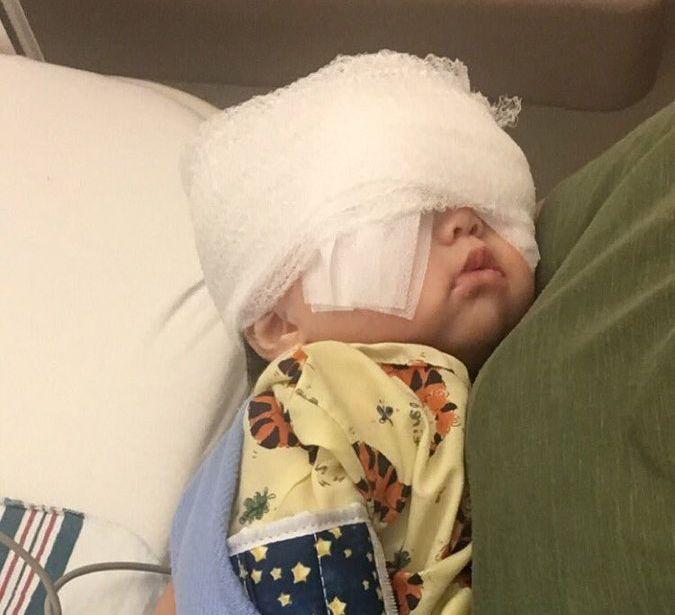 수술을 마친 생후 5개월의 멜라니
