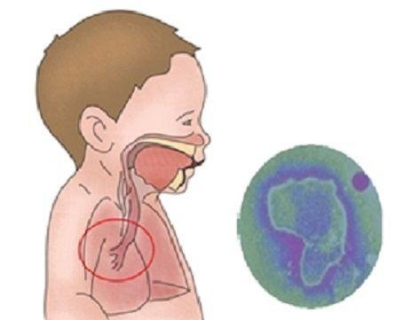 우리나라에서는 10월부터 3월까지 유행하는 '호흡기세포융합바이러스(RSV)'는 특히 면역체계가 아직 미약한 생후 6개월이내 영아들에게 치명적이므로 예방이 필수다.(사진=서울아산병원)