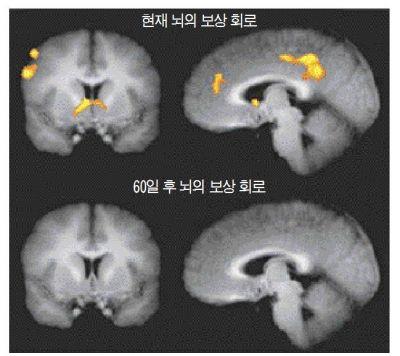 현재의 보상과 60일 이후의 보상에 대한 뇌의 활동 변화. 60일 이후의 보상에 대해서는 보상회로가 거의 반응하지 않는다.  Kable JW. & Glimcher PW. An 'As Soon As Possible' Effect in Human Intertemporal Decision Making: Behavioral Evidence and Neural Mechanisms. Journal of Neurophysiology  Published 1 May 2010 Vol.103 no. 5, 2513-2531