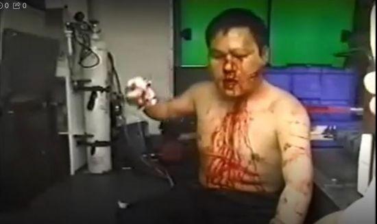 2001년 4월10일 인천 부평구 대우자동차노조 정리해고 반대 집회에서 경찰에 맞아 부상한 노조원이 피를 흘리고 있다. 사진 출처=대우자동차노조 촬영본 캡춰.