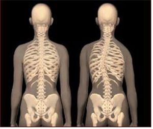 척추측만증 진단법…'똑바로 서서 등 90도 구부려 관찰'