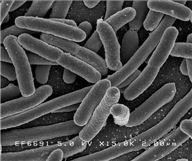 ▲슈퍼박테리아