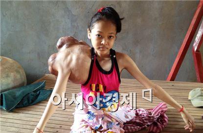 캄보디아 프놈펜에서 온 히응양(15세). 어깨에 어른 허벅지 만한 종양이 생겨 고생하고 있다. 사진제공= 사단법인 '새벽편지'