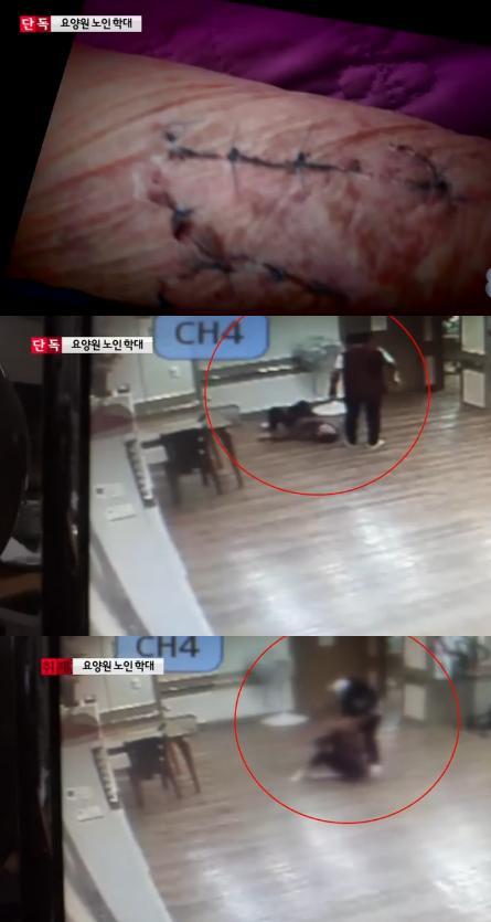 (출처: MBC 뉴스 영상 캡처)