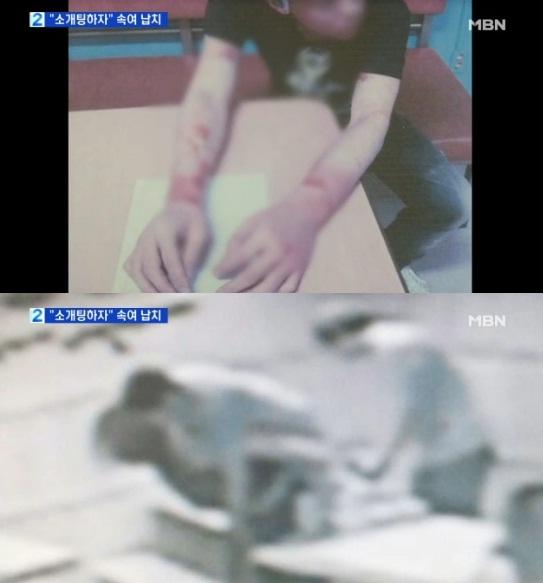▲소개팅을 빌미로 30대 남성을 불러낸 다음 동물 마취제를 먹여 납치한 사건이 일어났다. (사진:MBN 방송 캡처)