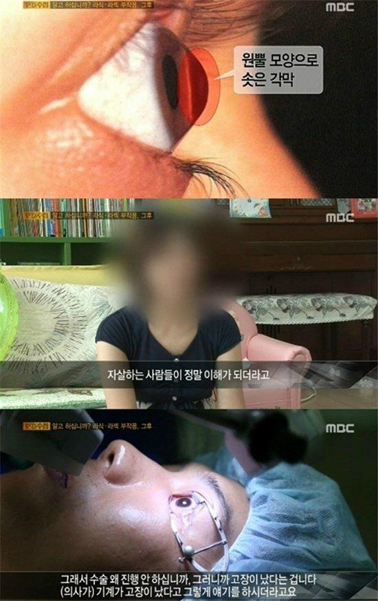 """5일 오후 방송된 MBC 'PD수첩'에서는 """"알고 하십니까? 라식 라섹 부작용 그후"""" 편이 방영됐다. (사진:MBC 'PD수첩' 캡처)"""