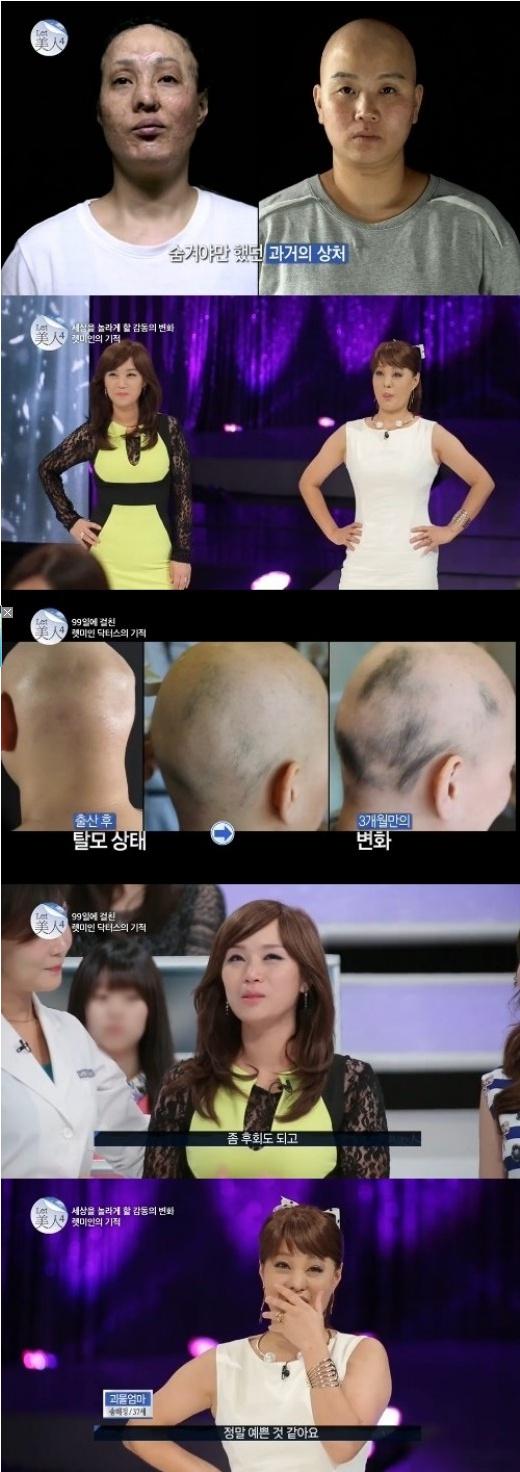 '털 없는 엄마', '괴물 엄마'의 변신 (사진: 스토리온 '렛미인4' 캡처)