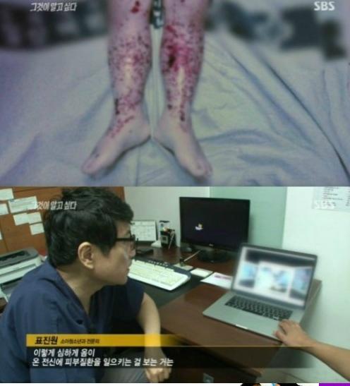 '그것이 알고싶다'에서 공개된 옴으로 사망한 아이(사진:SBS '그것이 알고싶다' 방송 캡처)