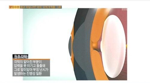 라식·라섹 수술의 부작용으로 발생하는 원추각막증(사진: MBC 방송화면 캡처)