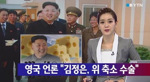 김정은 위 축소 수술 [사진=YTN 뉴스 캡쳐]