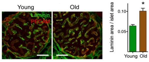 ▲혈관 섬유화 지표인 라미닌(Laminin) 단백질 함량.[사진제공=기초과학연구원]