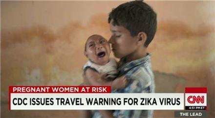 소두증을 앓고 태어난 브라질 신생아 사진=CNN 뉴스 캡처