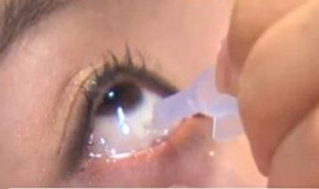안검염이란 '눈꺼풀 여드름' 의미. 사진 = 아시아경제 DB