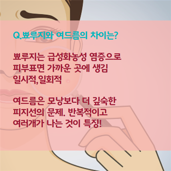[카드뉴스]모르지? 불쑥 찾아온 뾰루지 이별법
