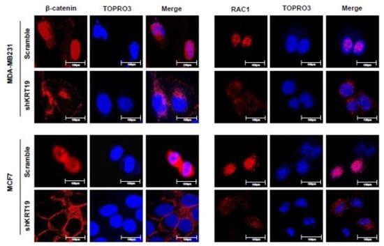 ▲특정 케라틴 단백질이 유방암을 억제한다는 사실이 규명됐다.[사진제공=건국대]