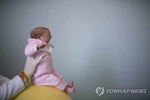 소두증 아기 / 사진 제공=연합뉴스