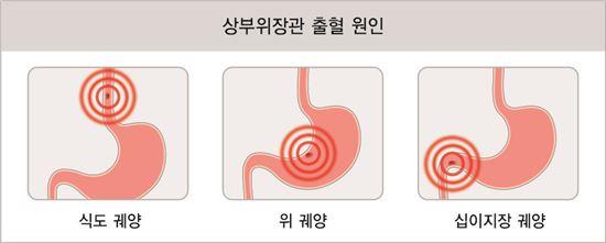 ▲상부위장관 출혈 원인 모식도.[사진제공=강동경희대병원]