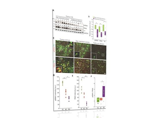 ▲파킨슨 병 환자의 사후 뇌조직에서 PAK4 단백질의 발현이 감소했다.[자료제공=한국연구재단]