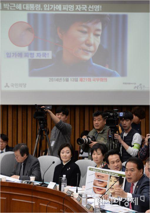 [포토]박근혜 대통령의 필러 시술 의혹
