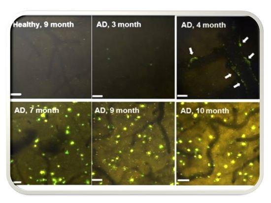 ▲알츠하이머 질병을 유발시킨 살아있는 쥐의 뇌 속을 실시간 이광자 현미경으로 영상화한 자료. 밝은 점들은  질병이 진행함에 따라 생성되는 아밀로이드 플라크이며, 나머지 배경은 분자 프로브가 모노아민 옥시데이즈 효소와 반응해 생성된 화합물을 보여주고 있다. 이들 영역의 신호(형광 세기)를 분석 비교함으로써 두 인자 사이에는 매우 밀접한 상관관계가 있고 질병이 진행될수록 모두 증가하는 것을 밝혀냈다.[사진제공=포스텍]