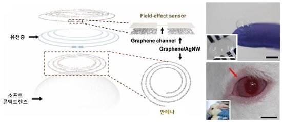 ▲스마트 콘텐츠렌즈로 혈당과 안압을 측정할 수 있다.[사진제공=유니스트]