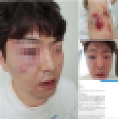 경찰 '용의자 오인' 폭행 피해자 / 사진=연합뉴스 제공(피해자 페이스북 캡처)