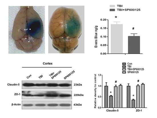 ▲외상성 치매로 발생하는 '혈액-뇌' 장벽의 파괴가 JNK 활성 억제로 회복됐다.[사진제공=미래부]