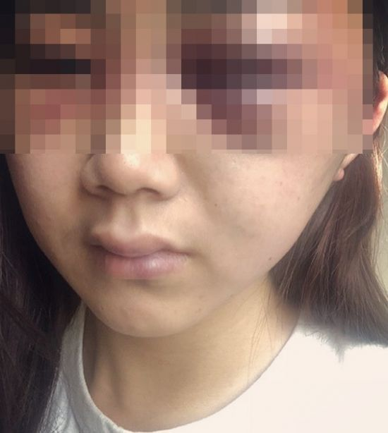 사진=광주 데이트 폭력 피해 여성 SNS