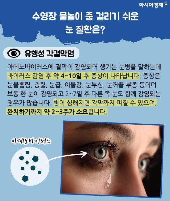 [건강을 읽다] 어린이날 나들이객 증가…유행성 눈병 주의보