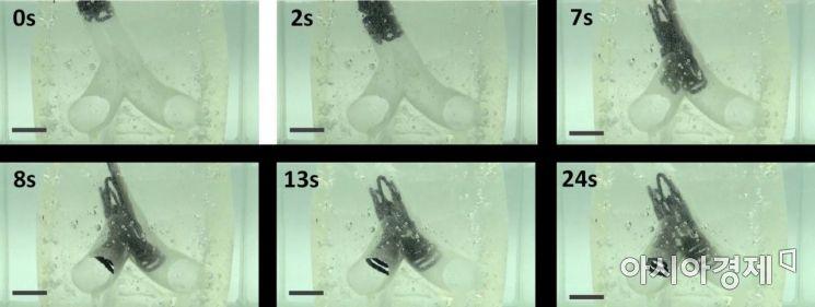 3D 프린터 이용 불규칙한 형태의 '혈관 삽입 스텐트' 구조 개발