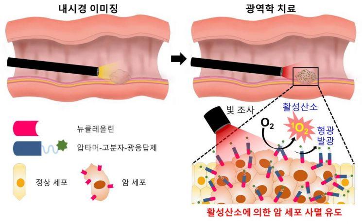 개발된 암 표적 광역학 소재를 이용한 내시경·복강경의 진단·치료 개략도