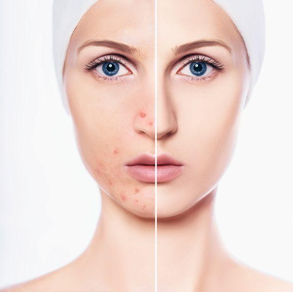 [비하인드 뷰티] 피부를 하얗게? '미백화장품'의 위험한 진실