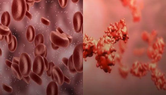 다른 혈액형의 혈액을 수혈받으면 적혈구(사진 왼쪽) 내의 응집원이 적혈구를 서로 뭉치게 해(사진 오른쪽) 혈관을 막습니다. [사진=유튜브 화면캡처 / 아시아경제 이진경 디자이너]