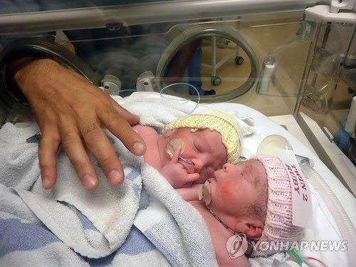 2012년 7월27일 영국의 한 병원에서 태어난 샴쌍둥이 자매 로지(좌)와 루비(우)/사진=연합뉴스