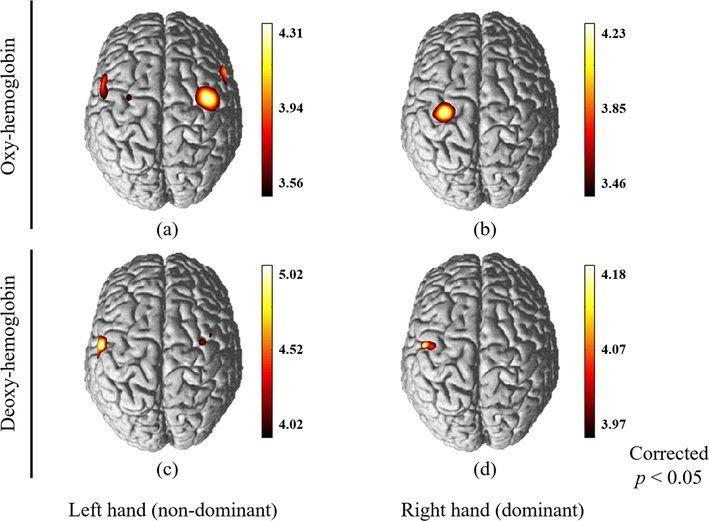 복잡한 동작 수행 시 숙련도 차이에 따른 대뇌 피질 패턴