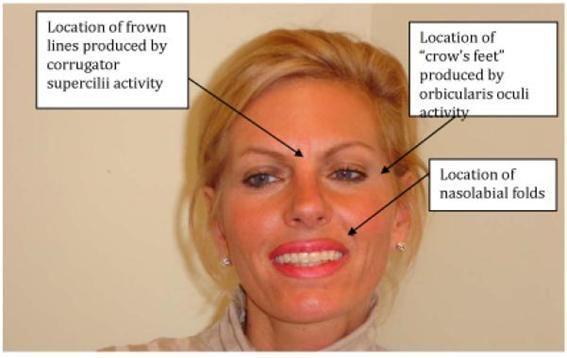 보톡스 시술을 받은 사람들은 우울과 불안감이 전반적으로 감소했지만, 자신의 외모가 더 나아졌다고 느끼지는 않았다. (그림 출처: Davis JI. et al., The Effects of BOTOX Injections on Emotional Experience. Emotion. 2010 Jun; 10(3): 433?440.)