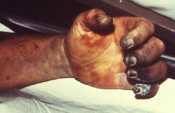 (사진=미국질병통제예방센터(CDC) 홈페이지/www.cdc.gov)