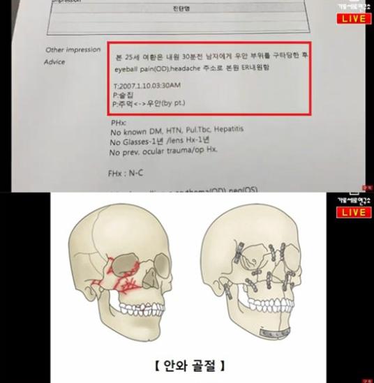 유튜브 채널 '가로세로연구소'(가세연)가 가수 김건모(51)의 폭행 의혹을 추가로 폭로했다 / 사진=유튜브 채널 '가로세로연구소' 화면 캡처