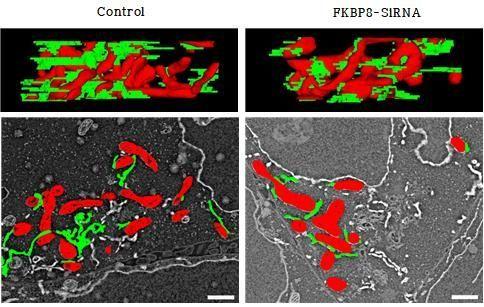 미토콘드리아-소포체 연접 (MAM)의 3차원 구조 변화