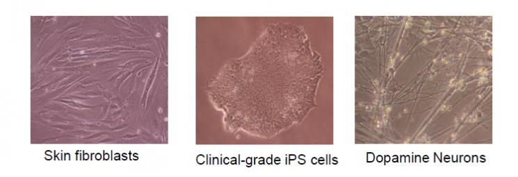 피부세포, 유도만능 줄기세포, 도파민 뉴런의 사진
