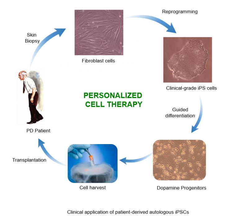 맞춤형 줄기세포를 이용한 파킨슨병 치료법 모식도