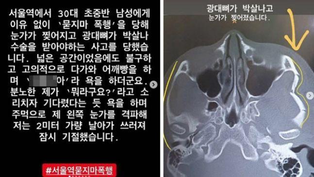 이른바 '서울역 묻지마 폭행 사건'의 피해자가 자신의 SNS에 올린 게시물. 사진=온라인 커뮤니티 캡처