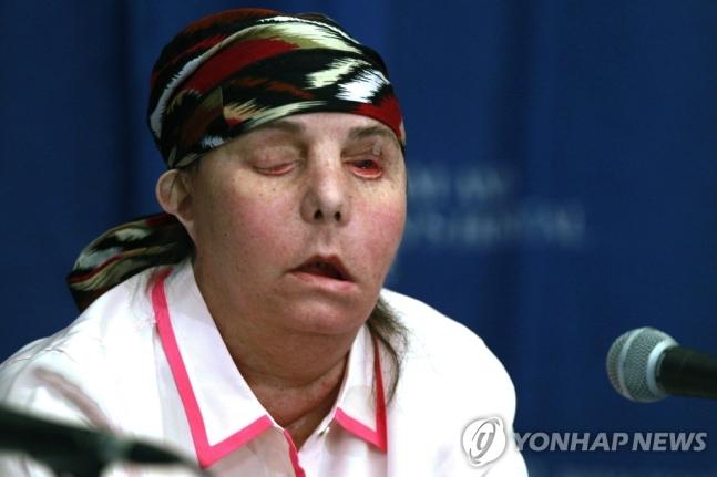 가정폭력에 얼굴잃은 미국 여성 카먼 블렌딘 탈러튼의 2013년 1차 수술 직후 모습 (사진=연합뉴스)