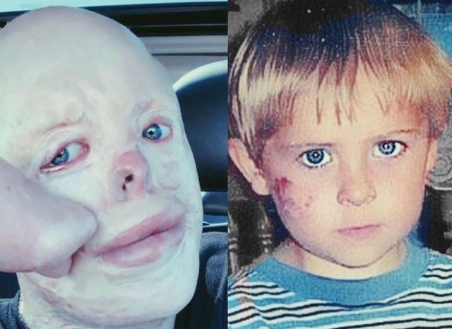 존 퀸은 4살 때(오른쪽, 사고 전) 화상을 입었으나 기적적으로 살아난 뒤 현재 의료진의 길을 걸어가고 있다. 사진=존 퀸 인스타그램 캡처.