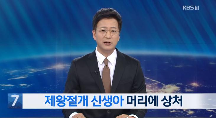 23일 KBS에 따르면, 대구의 한 병원에서 지난 16일 제왕절개 수술 도중 수술용 칼로 신생아 머리에 5cm 정도의 상처를 내고 꿰맨 뒤 곧바로 아기의 부모에게 알리지 않았다. 사진=KBS뉴스 방송화면 캡처.