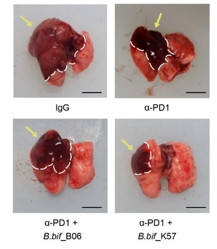 면역항암제 효능 높이는 '장내 미생물' 찾았다