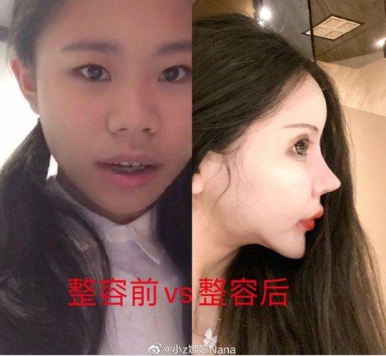 16살이 될 때까지 3년간 100번 이상의 성형수술을 한 저우추나. 왼쪽은 성형 전, 오른쪽은 성형 후의 모습이다. 사진='웨이보' 캡쳐